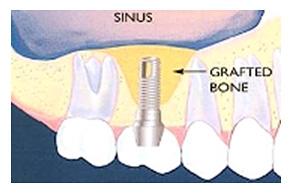 Операции имплантации зубов в Гомеле