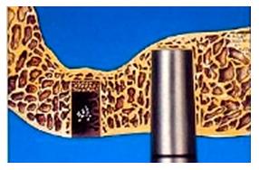 Базальная имплантация зубов при атрофии костной ткани зуба