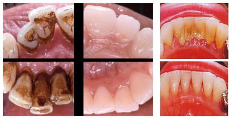 Удаление зубного налета после чая или кофе