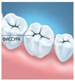 Герметизация фиссур и профилактика заболеваний полости рта