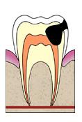 Лечение пульпита, эндодонтическое лечение каналов зуба