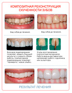 Реставрация зубов цена