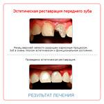 Реставрация зубов в Гомеле